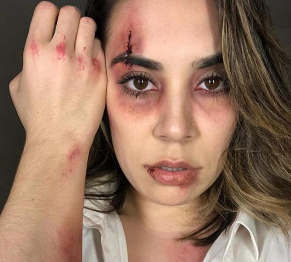 Naiara Azevedo choca com olho roxo: 'Que ele pague caro'.