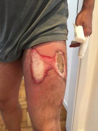 Homem fica com pernas e mãos queinadas, após celular pega fogo.