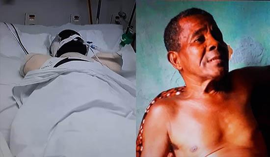 Idoso tem braços e orelhas amputados após ataque de Pit Bull no interior da Bahia