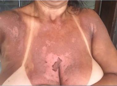 Mulheres denunciam clínica por queimaduras durante bronzeamento com fita em Itabuna