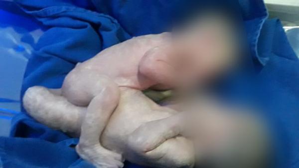 SAJ: Gêmeas que nasceram unidas são encaminhadas para cirurgia