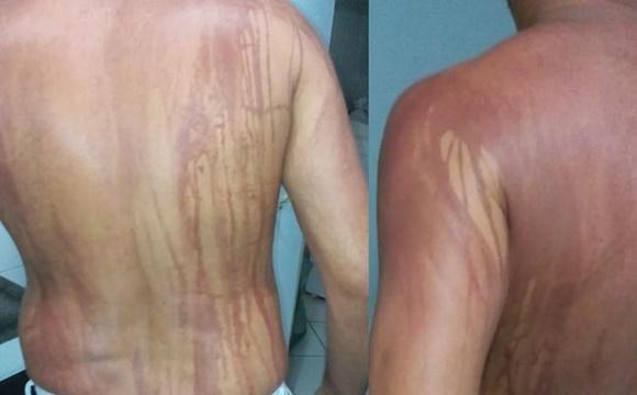Ilhéus: turista fica com manchas no corpo após banho de mar
