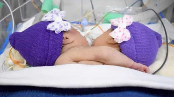 Gêmeas siamesas nascem ligadas pelo peito e estão em estado grave