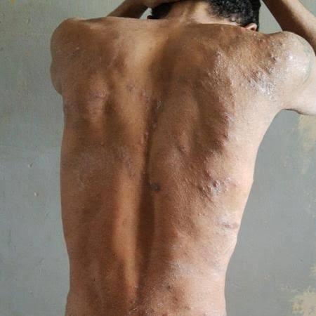 Surto misterioso em prisão causa feridas e sensação de ser 'devorado vivo