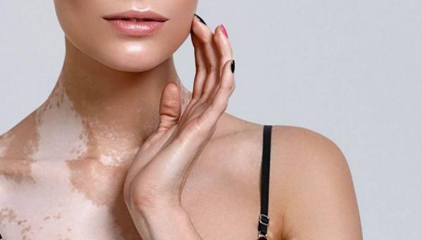 25 de Junho, Dia Mundial do Vitiligo; doença que causa manchas brancas na pele.
